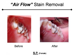 Air flow stain removal